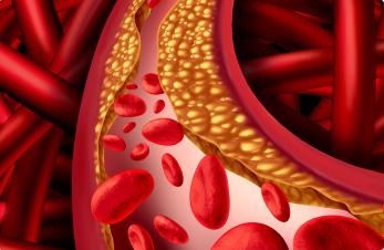 pastillas naturales para reducir grasa corporal